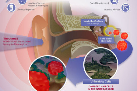 Hearing Loss at a Glance: The causes, impacts and how cord blood stem cells may help Infographic