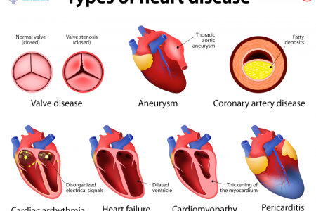 Heart Disease Treatment Infographic