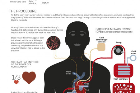 HEART TRANSFORMATION Infographic