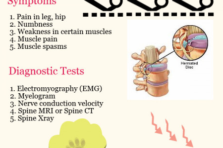 Herniated Disc Infographic