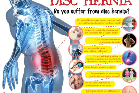 Herniated Discs Treatments - Understanding Spine Surgery  Infographic