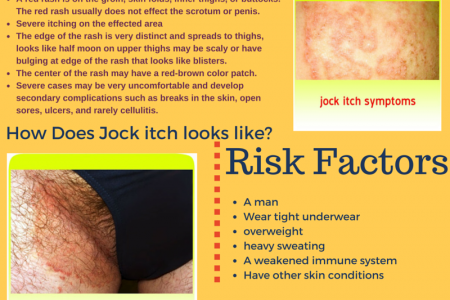 Herpes or Jock Rash-what's the Difference? Infographic