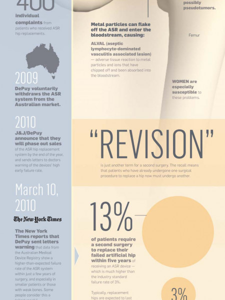 Hip Replacement Recall Infographic