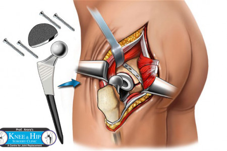 Hip Replacement Infographic