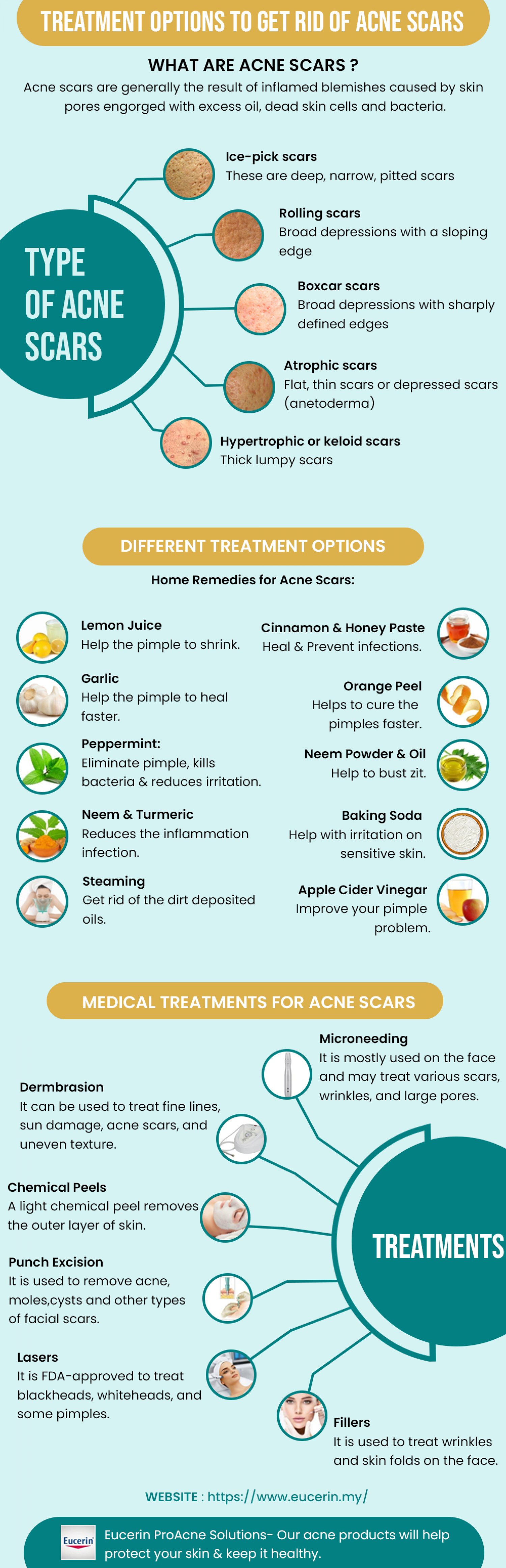 How to Get Rid of Acne Scars Infographic