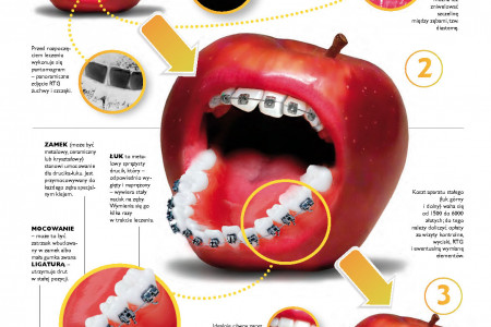 How dental braces work Infographic