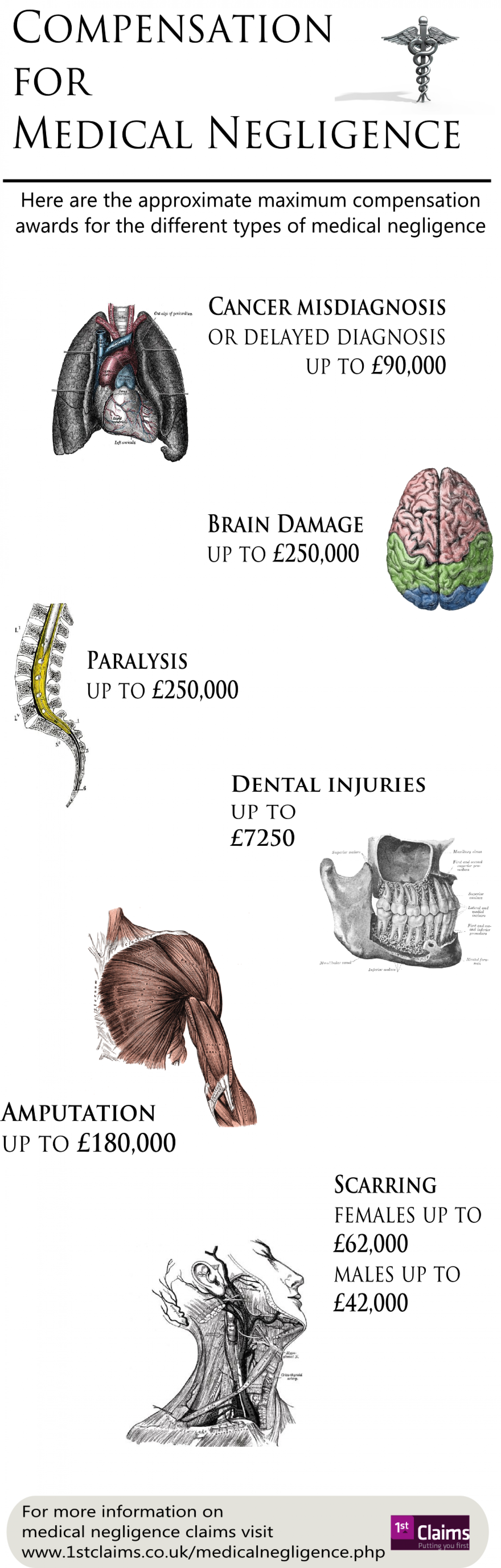 How Much Compensation for Medical Negligence Infographic