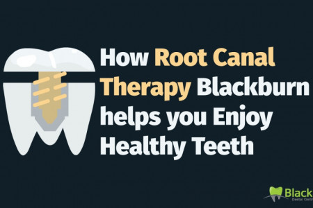 How Root Canal Therapy Blackburn helps you Enjoy Healthy Teeth Infographic