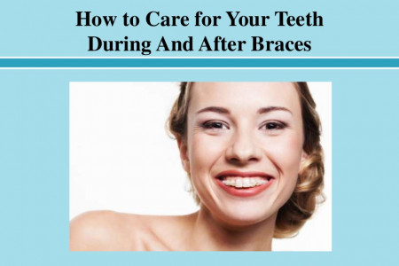 How to Care for Your Teeth During And After Braces Infographic