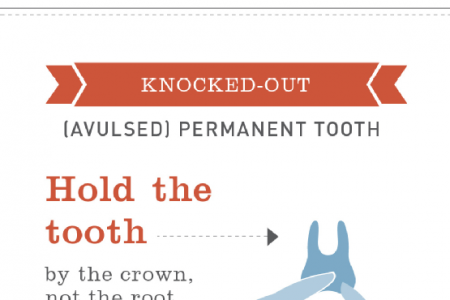 How to Handle Common Dental Emergencies Infographic