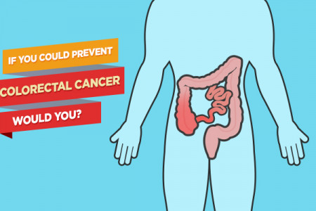 If You Could Prevent Colorectal Cancer, Would You? Infographic
