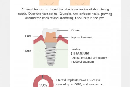 Improving Your Smile with Dental Implants Infographic
