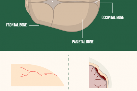 Infant Skull Fracture: Causes, Signs & Treatment Infographic