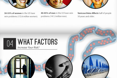 Journey Through a Varicose Vein Infographic