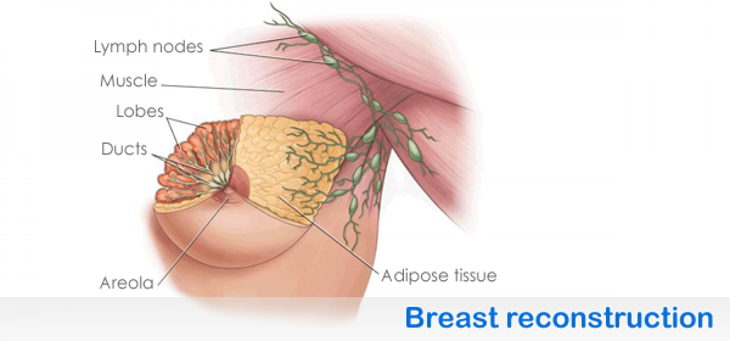 breast reconstruction plastic surgeon