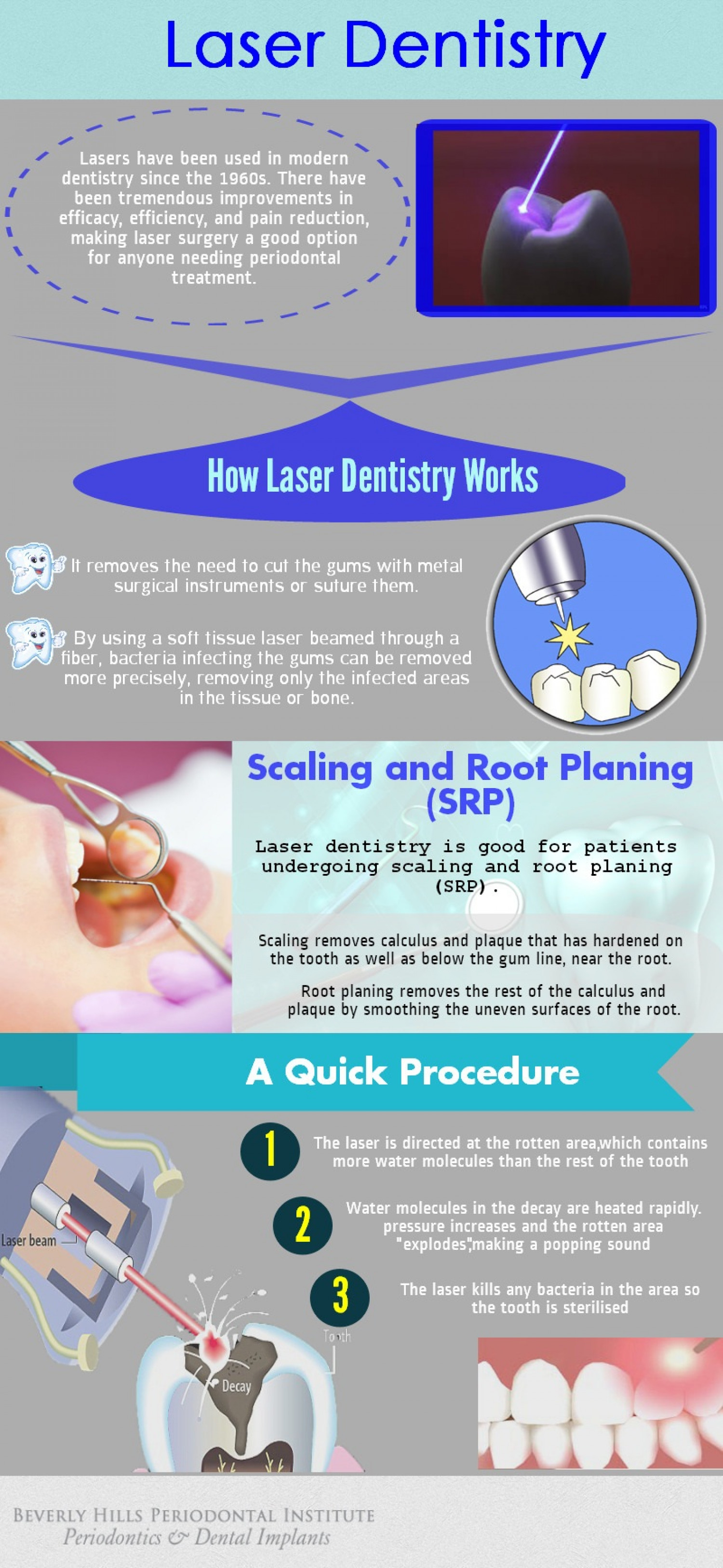 Laser Dentistry Infographic