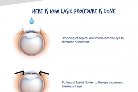 LASIK: How It Works Infographic