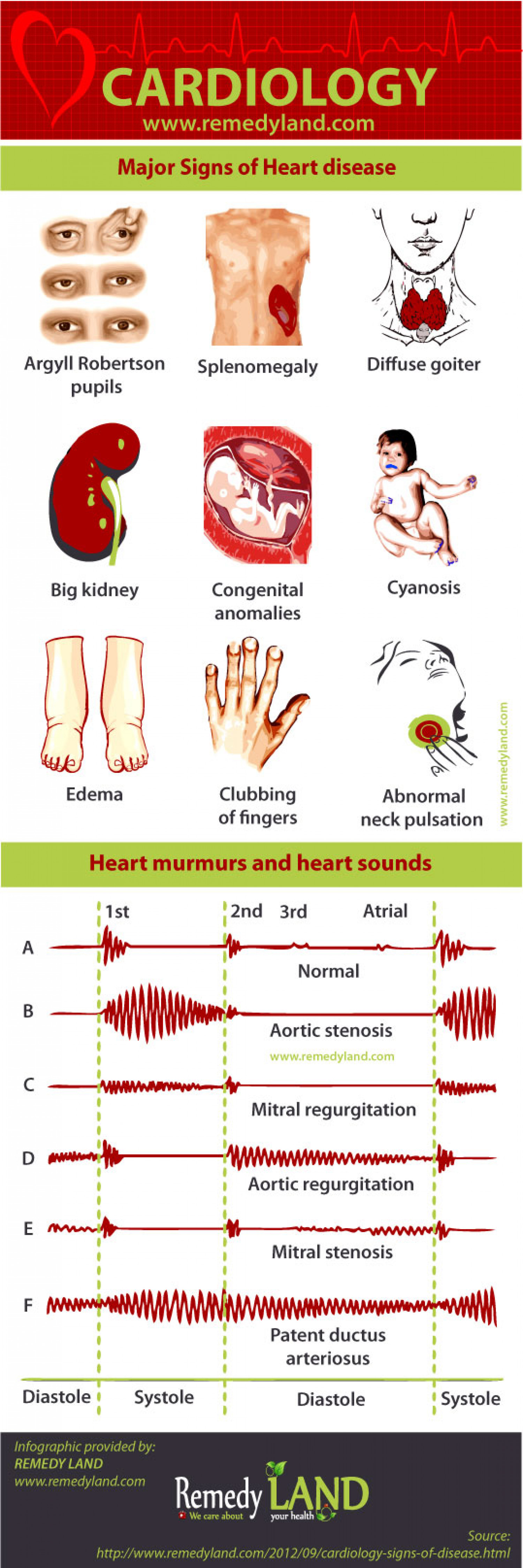 Major signs of heart disease  Infographic