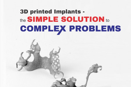 Mandible implant by 3d printing technology Infographic