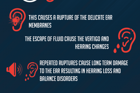 Meniere's Disease (aka Endolymphatic Hydrops) Infographic