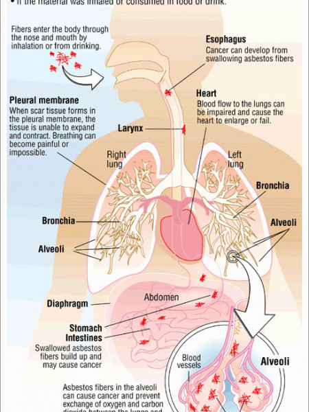 Mesothelioma and Asbestos Exposure Infographic