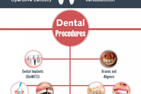 Mexico Top Cities for Dental Care Infographic