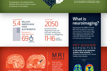 Neuroimaging & Alzheimer's: Questions & answers Infographic