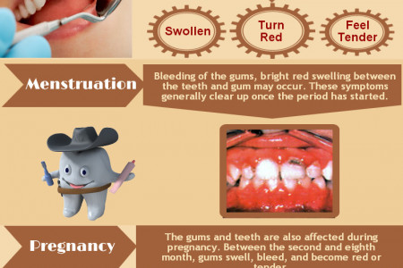 Periodontal Disease - Effects on Women Infographic