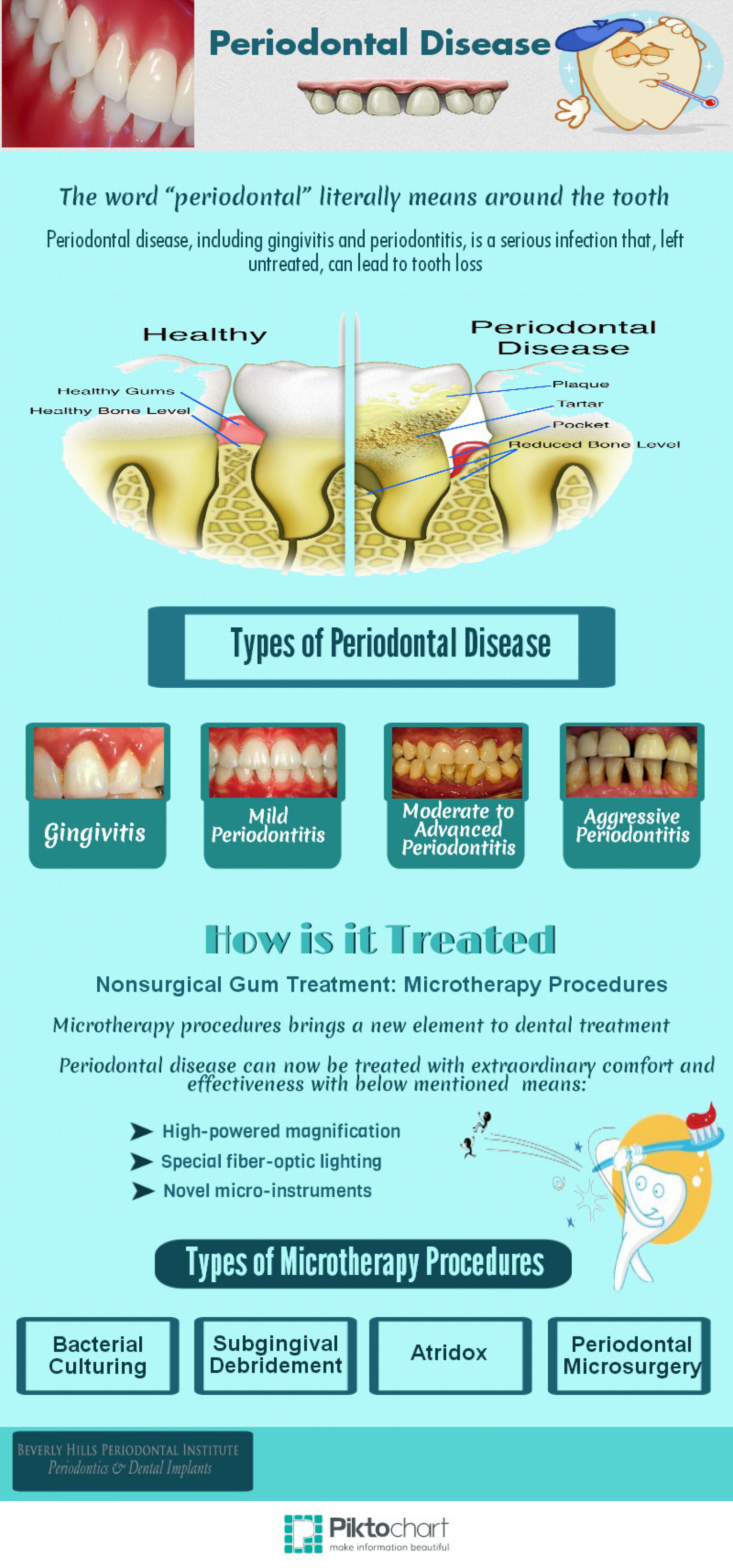 Periodontal Disease Infographic