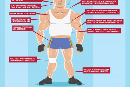 Physical Signs of Steroid Abuse Infographic
