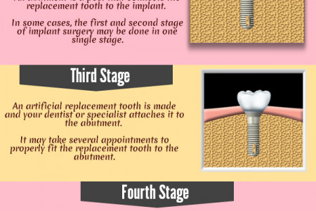 Procedure Of Dental Implants Infographic
