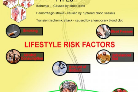Reducing Stroke Risks Infographic
