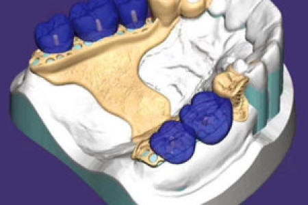Removable Prosthetic Dentures   Removable Prosthetic Manufacturers   Midway denal lab Infographic