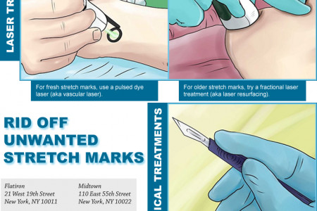 Rid Off Unwanted Stretch Marks Infographic