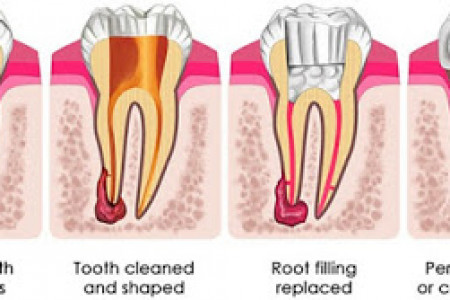 Root Canal Cost in Melbourne All You Need To Know Infographic