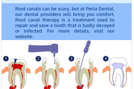 Root Canal Desoto Infographic