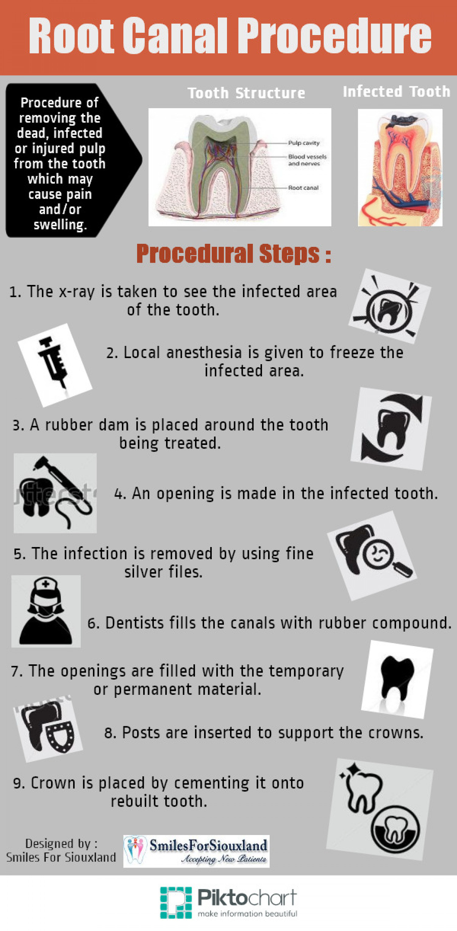 Root Canal Procedure Infographic