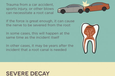 Signs You May Need a Root Canal Infographic