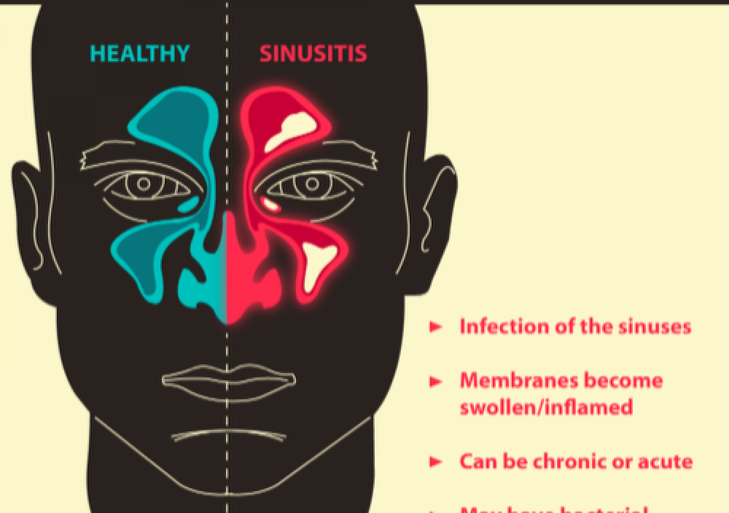 Sinus Headaches 101 Infographic