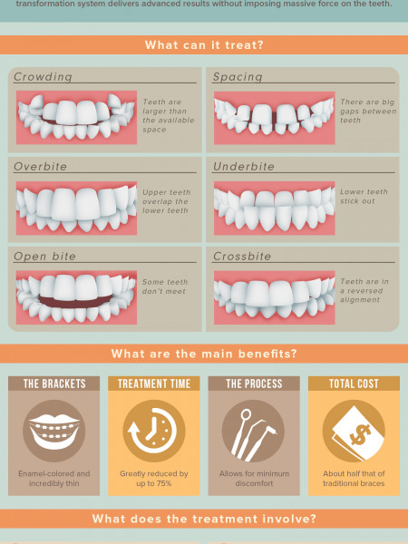Six-Month Braces: The Modern Twist on Tried-and-True Orthodontics Infographic