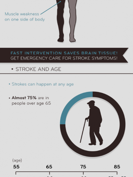 Sizing Up Strokes in Seniors  Infographic