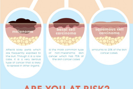 Skin Cancer: UV Rays on the Rise Infographic