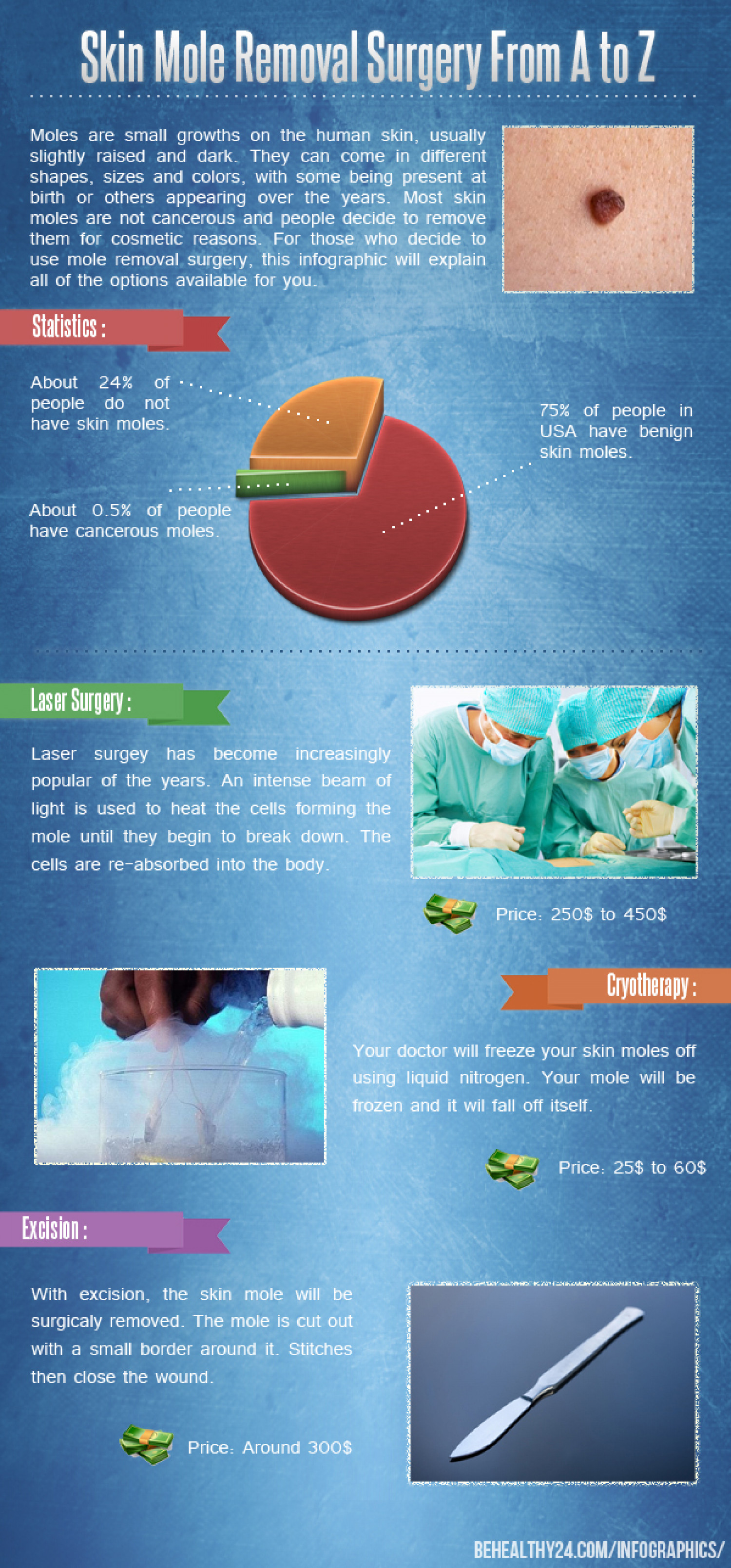 Skin Mole Removal Surgery From A to Z Infographic