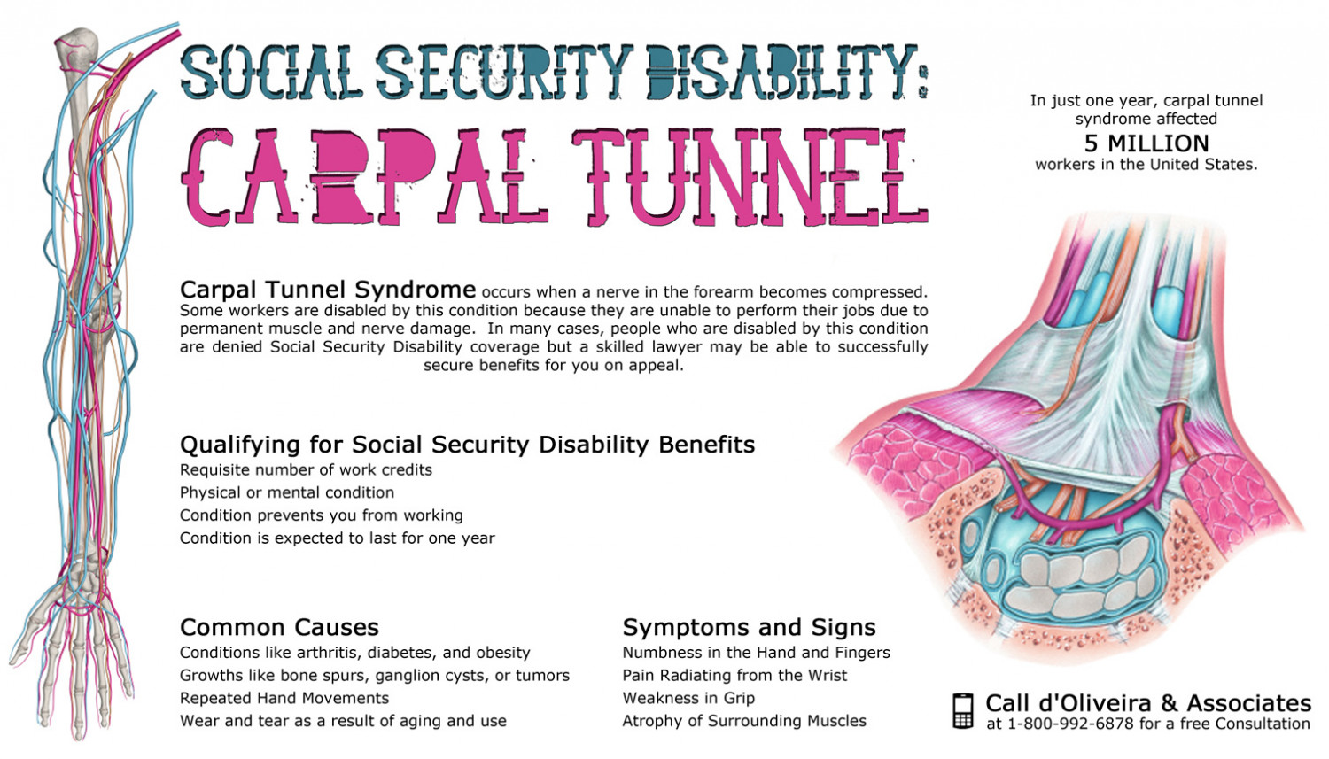 Social Security Disability: Carpal Tunnel Syndrome Infographic