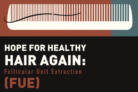 Solving Hair Loss with FUE Infographic