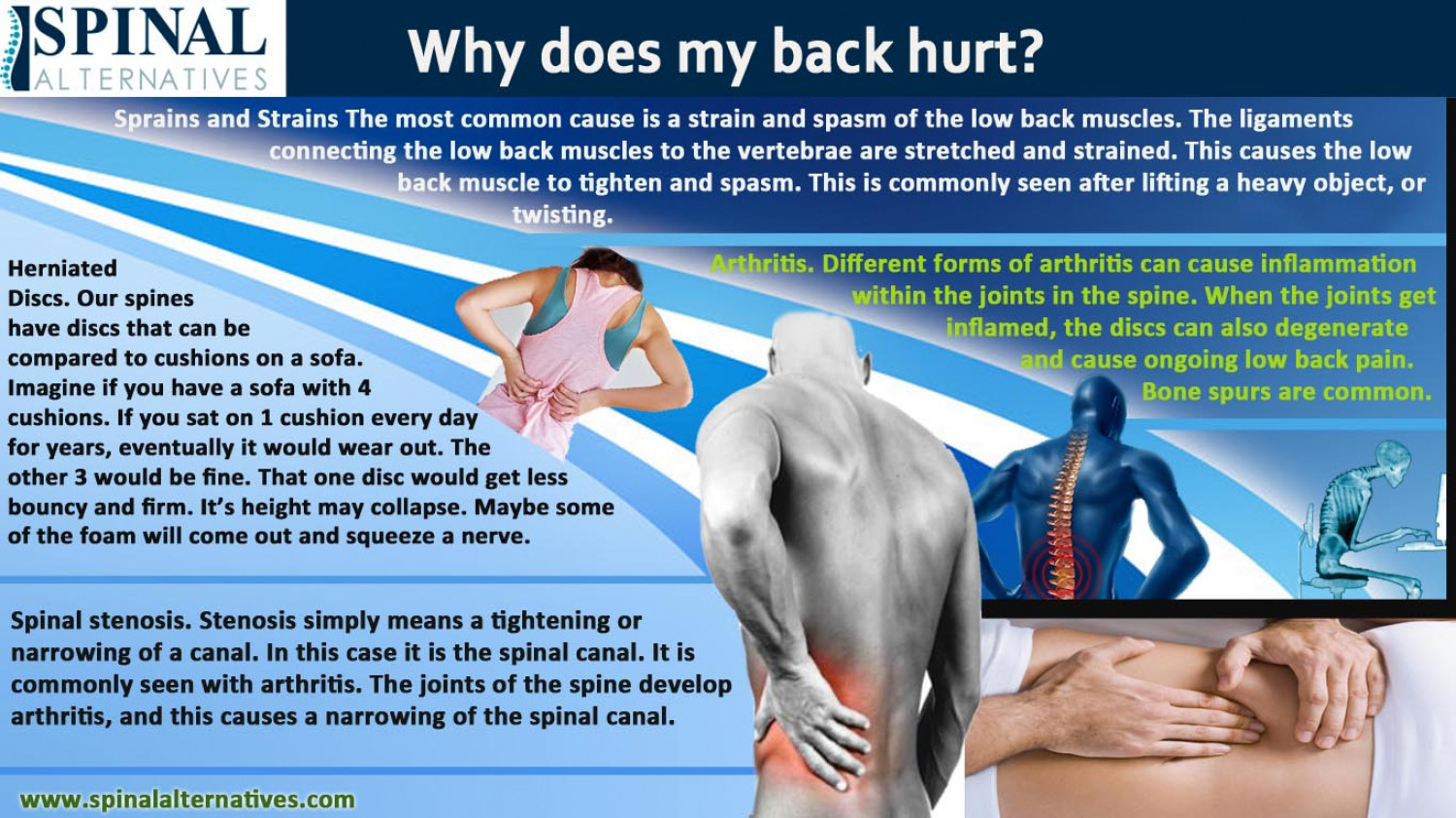Spinal Alternatives - Why Does My Back Hurt? Infographic