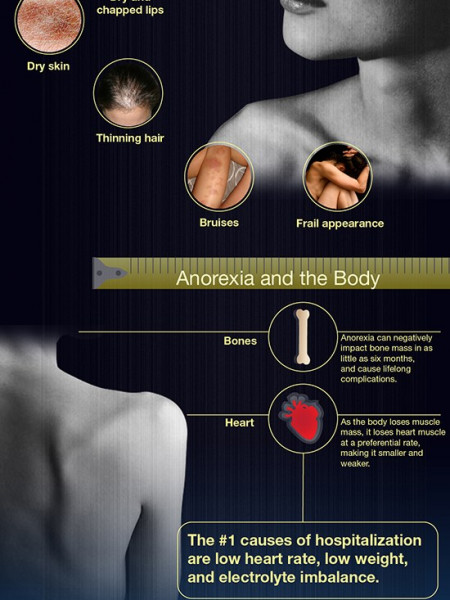 Symptoms of Anorexia and Anorexic People Infographic