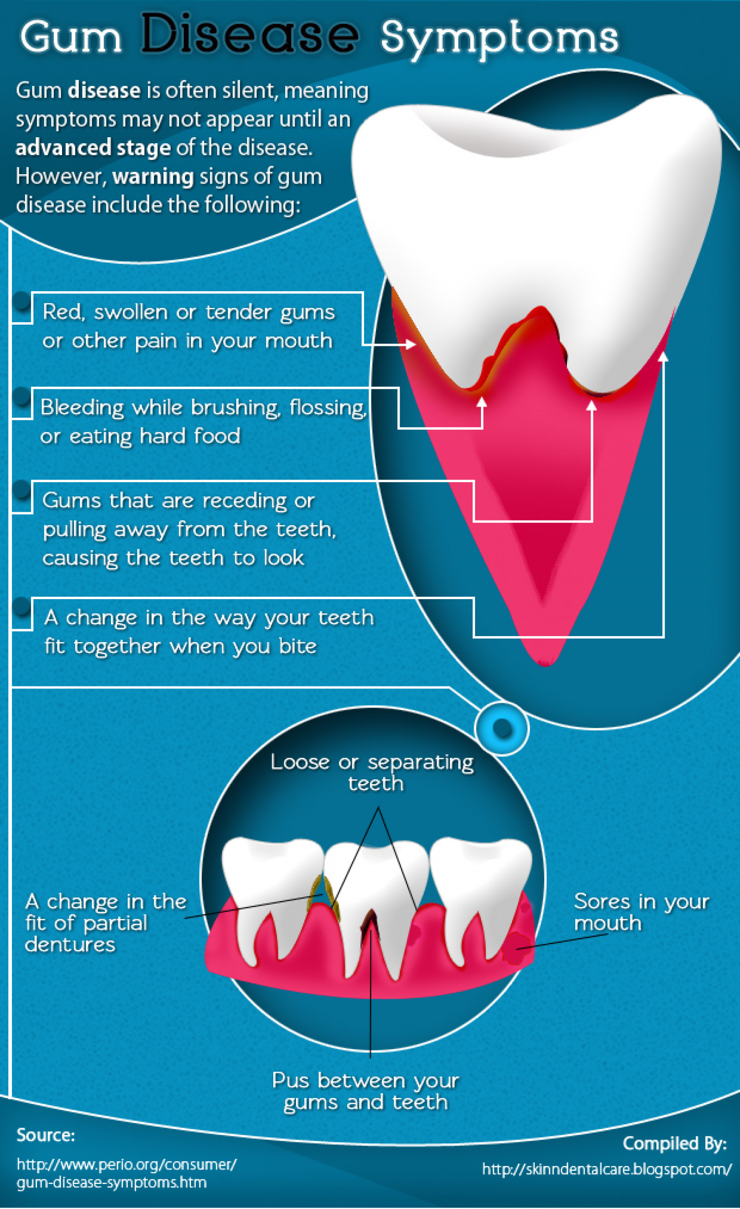 Symptoms of Gum Diseases [Infographic] Infographic