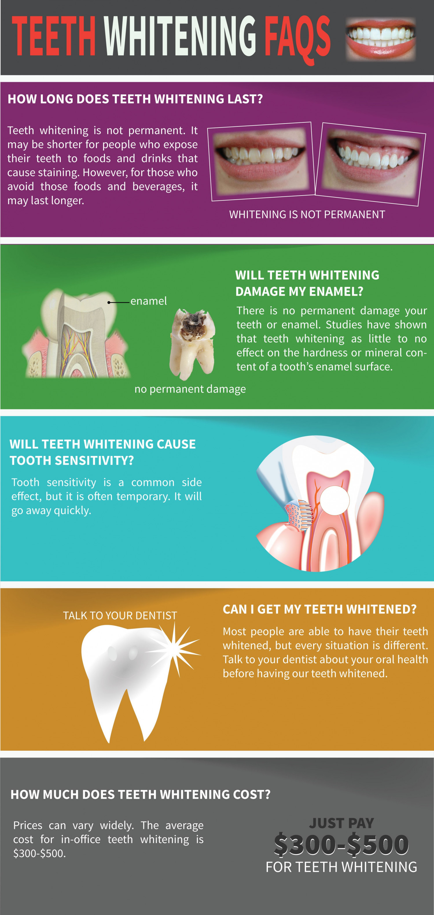 Teeth Whitening FAQs Infographic