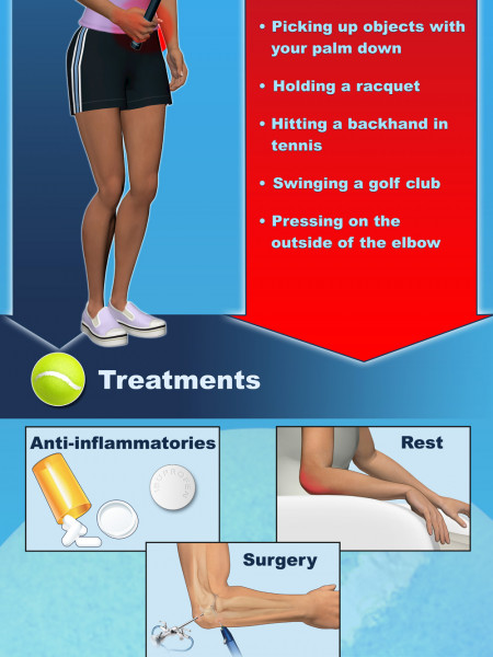 Tennis Elbow Infographic